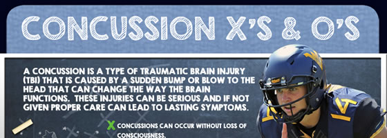 wr-concussions-1a